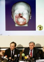 [Conférence de presse sur la première greffe du visage]